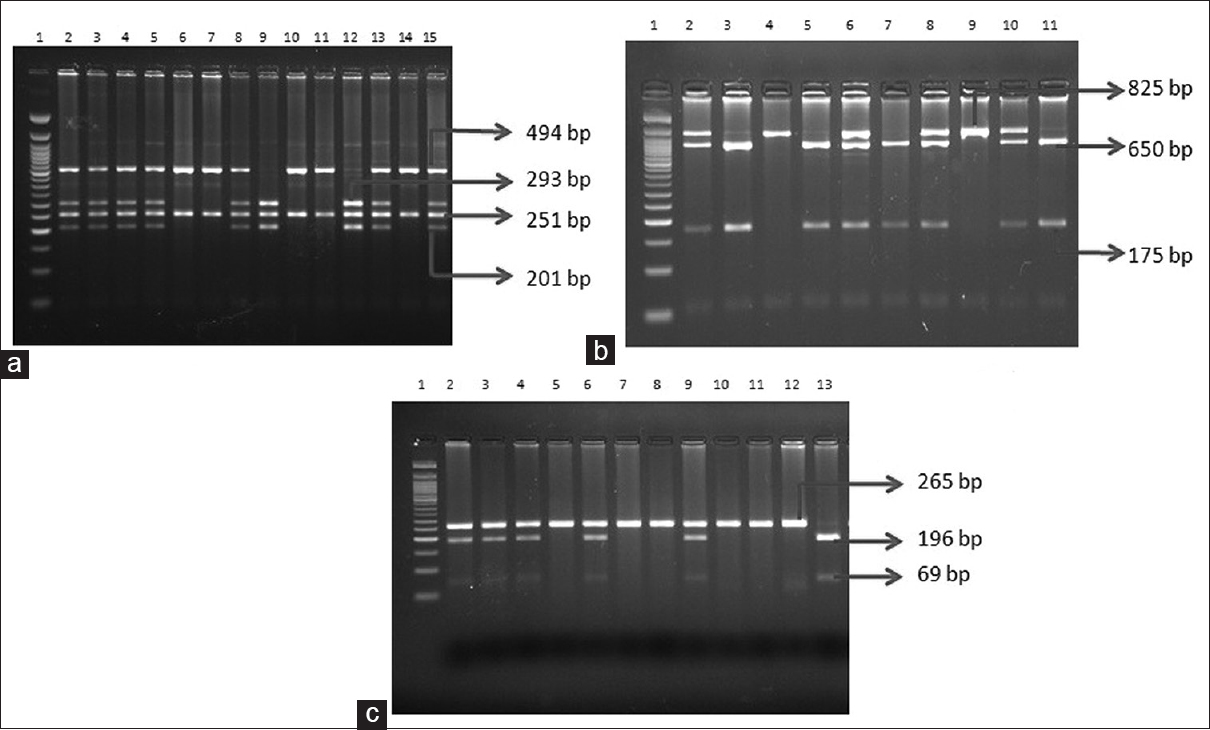 Figure 1: Restriction fragment length polymorphism digestion of <i>TaqI</i> (a), <i>BsmI</i> (b) and <i>FokI</i> (c) in 3% agarose gel stained with ethidium bromide with 50 bp ladder in the first Lane in all the gel pictures. (a) <i>TaqI</i> digestion - TT/494, 251 (homozygous, wild type), TC/494, 293, 251, 201, (Heterozygous) CC/293, 251, 201 (Homozygous, mutant). (b) <i>BsmI</i> digestion - GG/650, 175 (homozygous, wild type), GA/825, 650, 175 (Heterozygous), AA/825 (Homozygous, mutant). (c) <i>FokI</i> digestion - TT/196, 69 (Homozygous, wild type), TC/265, 196, 69 (Heterozygous), CC/265 (homozygous, mutant)