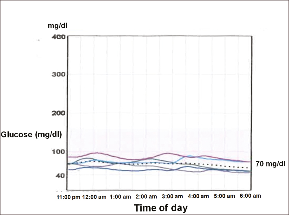 Figure 1: Continuous glucose monitoring showing several episodes of hypoglycemia despite regular oral carbohydrate intake