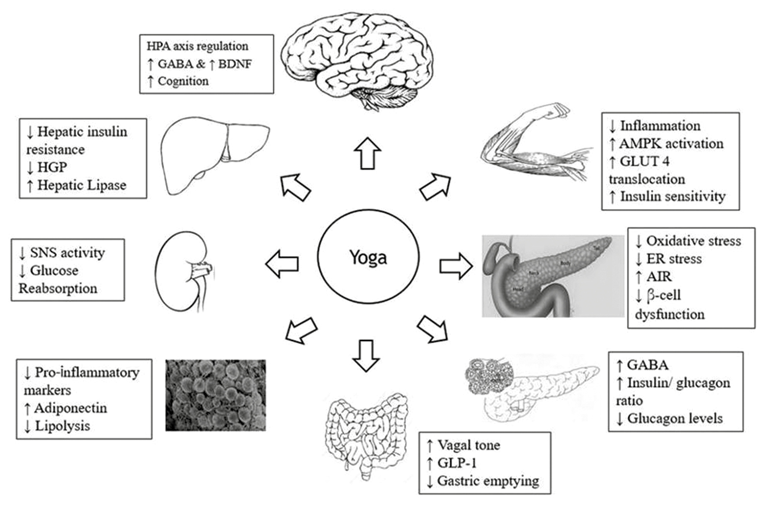 Figure 2: Summary of the hypothesised role of yoga in management of the 'Ominous octet' defects of diabetes (Adapted from Defronzo 2009)
